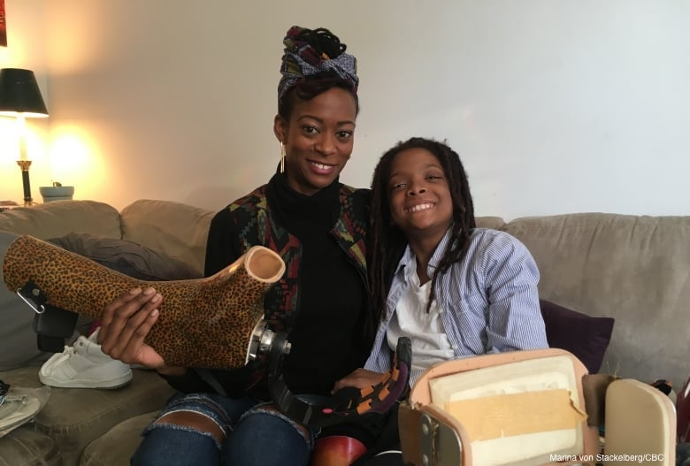 10-year-old Reaches Out To Prosthetic Users Around The World by Repurposing Used Artificial Limbs
